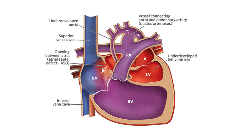 hypoplastic-left-heart-syndrome-illustration-canonical-16x9