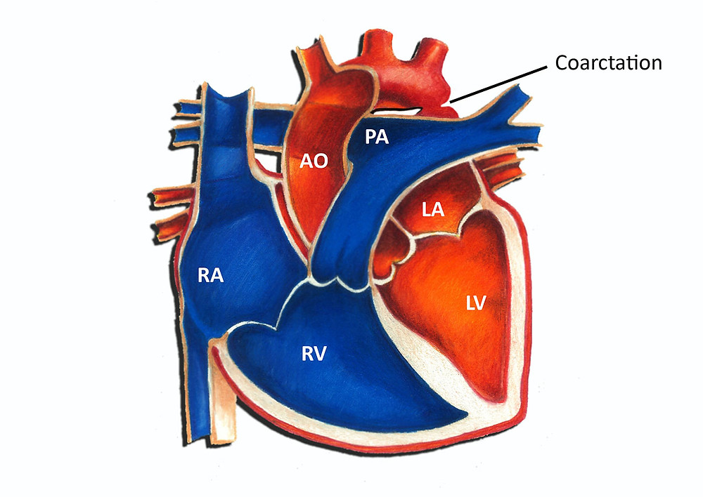 Image result for HLHS heart coarctation of aorta