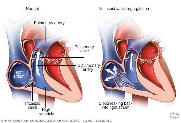Image result for tricuspid valve regurgitation
