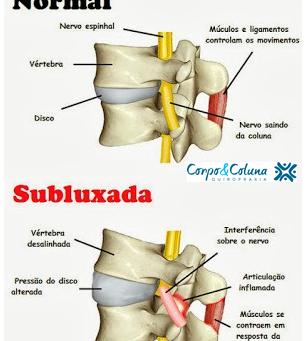 O que é subluxação vertebral?