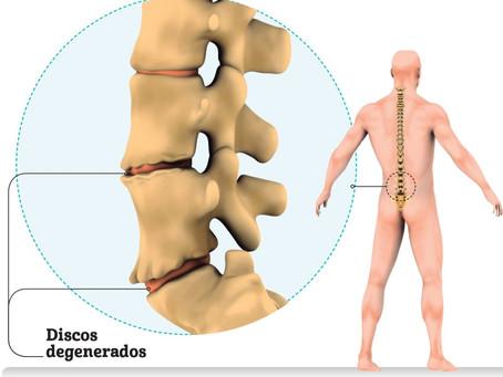 SaibaoqueéDiscopatiaDegenerativae como a Quiropraxia pode ajudar |Corpo&Coluna