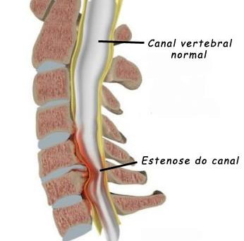 Tudo que você precisa saber sobre estenose de canal vertebral lombar | Corpo & Coluna