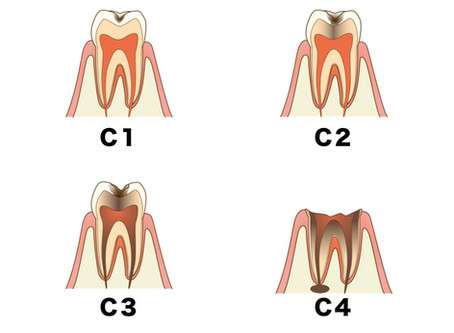松山市の歯医者の目線でお話しする「なるべく削らない」虫歯治療2