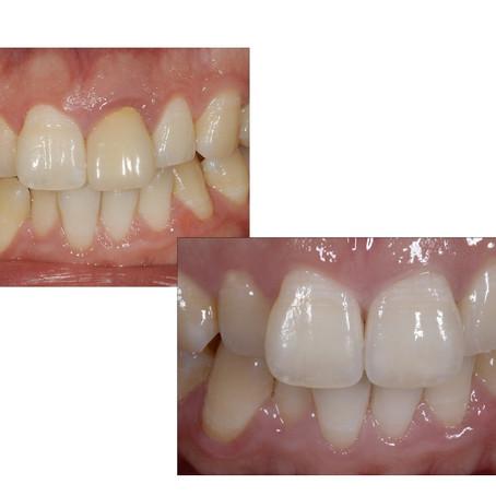 松山市の歯医者がお話しする「セラミック」「審美歯科」