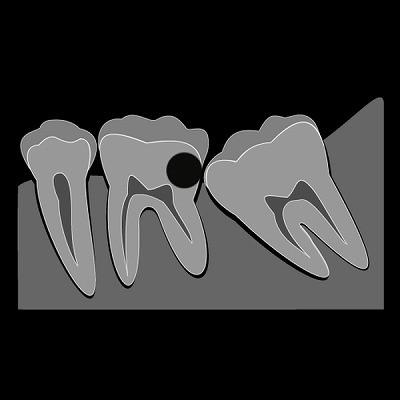 松山市の歯医者目線の親知らず