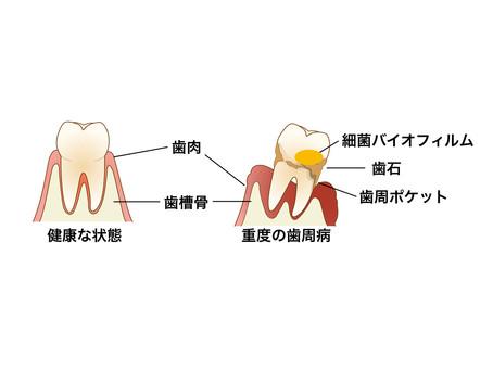 松山市の歯医者がお話しする「歯周病」