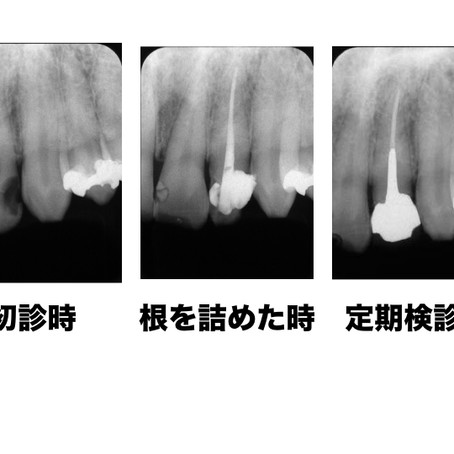 松山市の歯医者が教える症例を交えた「根管治療」