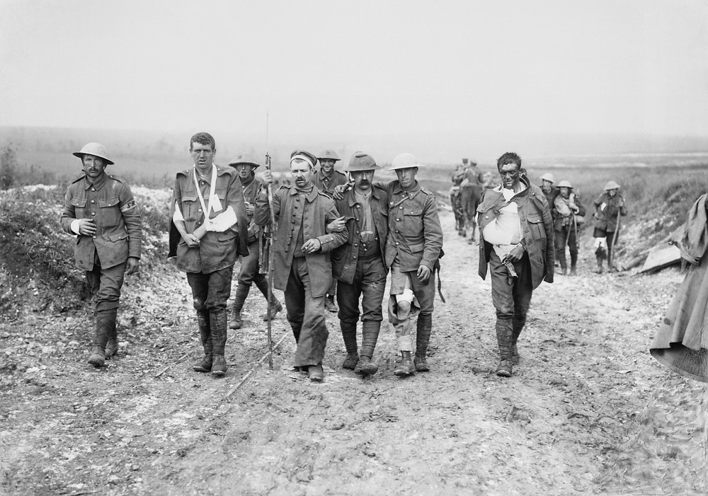 British wounded First World War