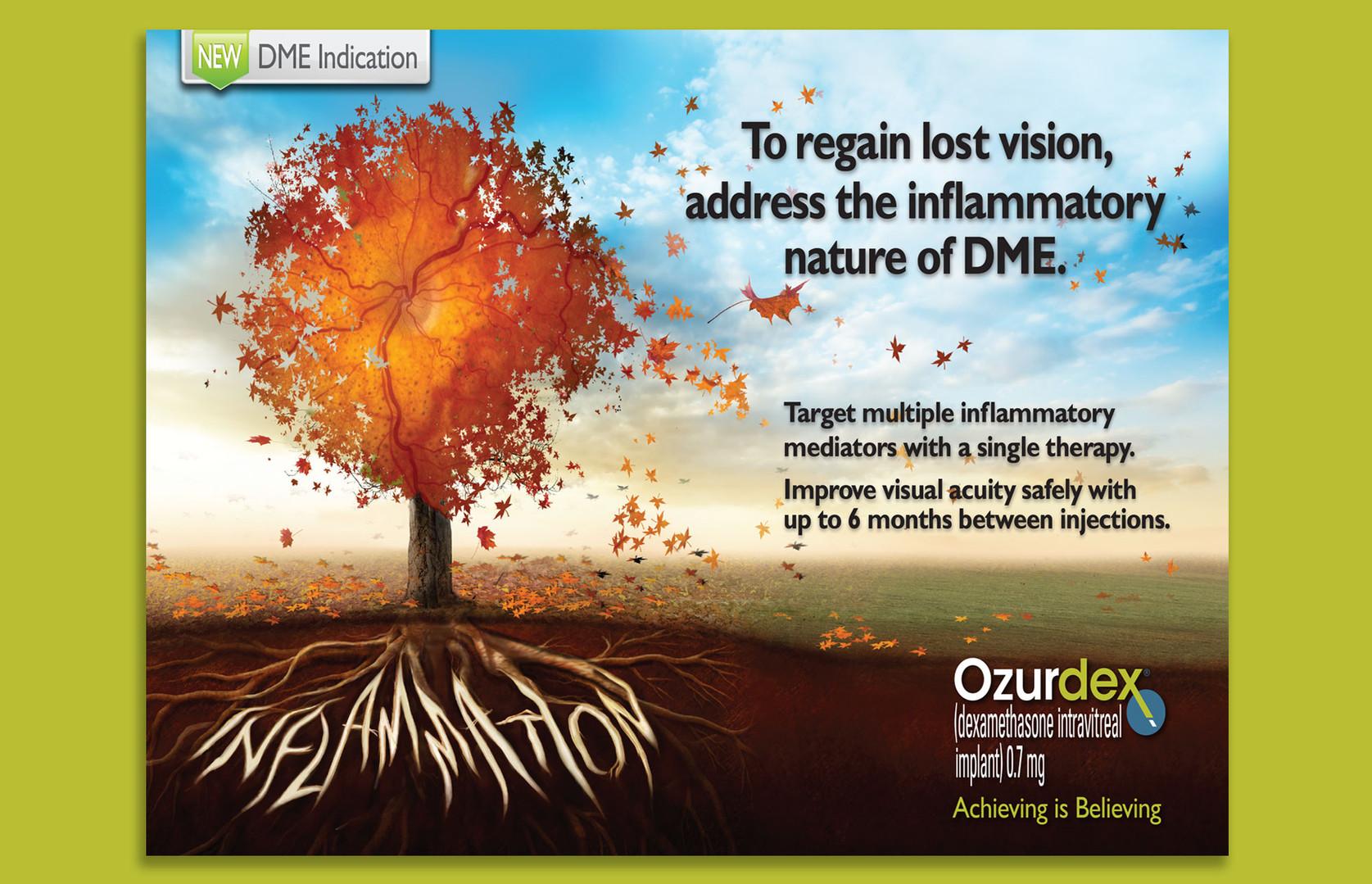 Ozurdex Ad Concept