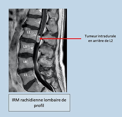 IRM T medul.jpg