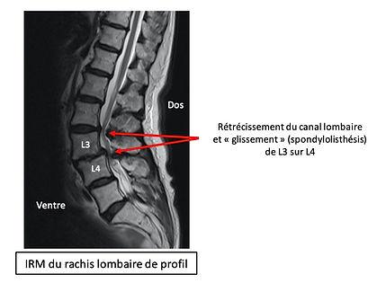 IRM SLD.jpg