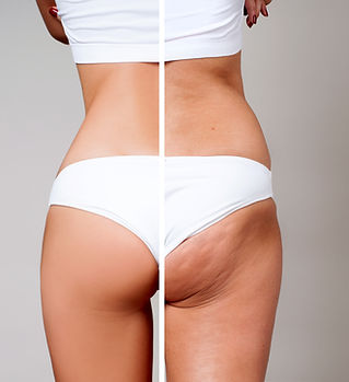 Female buttocks before and after treatment. Plastic surgery concept..jpg