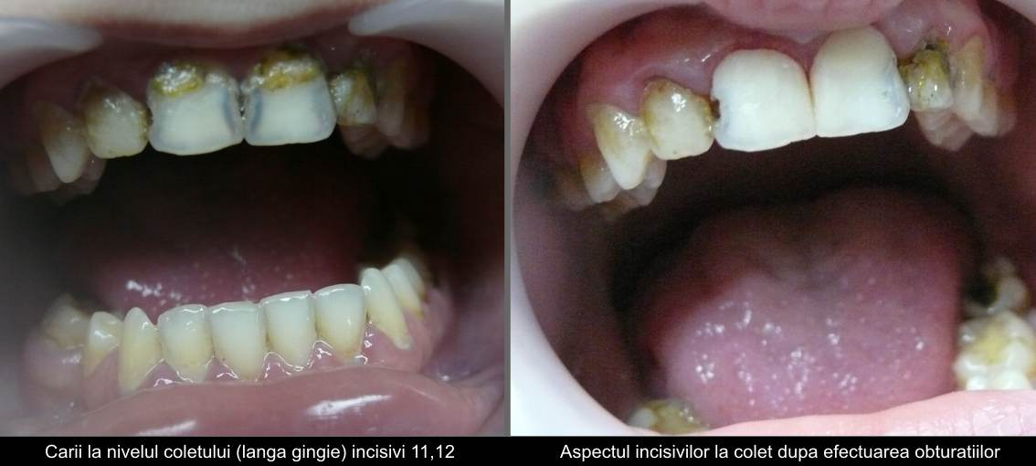 Incisor large cavities