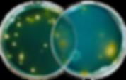 5_Legionella_Pneumophila.png
