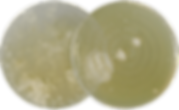 1_Staphylococcus_aureus-02.png