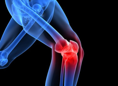 What to expect after an ACL injury