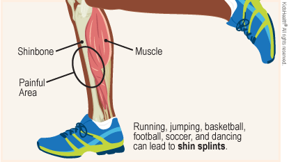 Shin Splints!