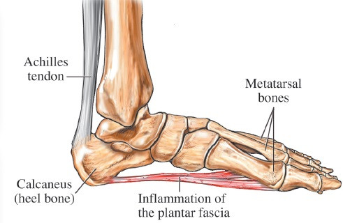 A diagram of the Plantar Fascia from where it originates and inserts