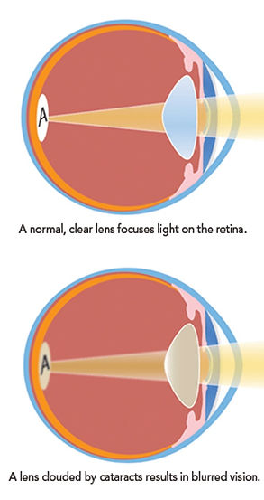 What Are Cataracts Photo (1).jpg