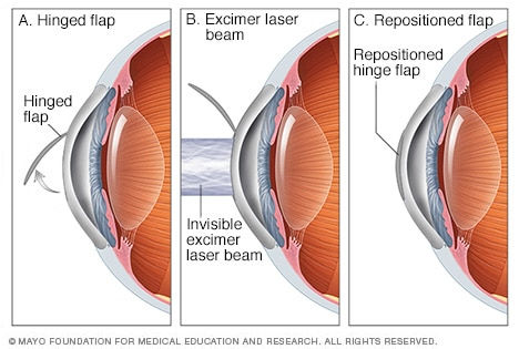 LASIK Surgery in Orange County, CA