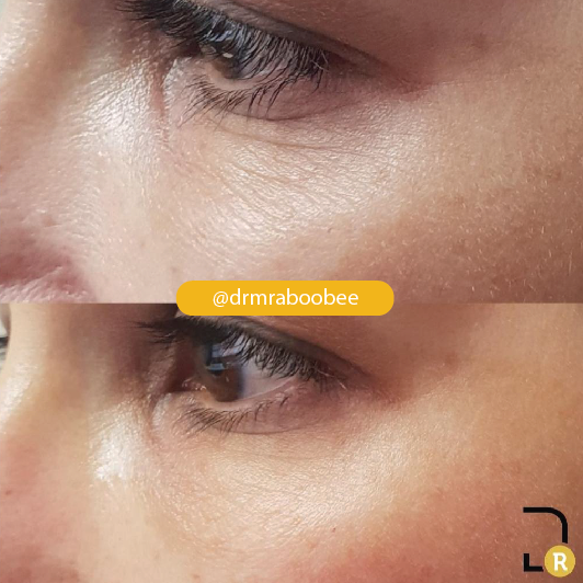 PDO undereye for fine lines