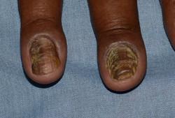 Chronic paronychia 3563