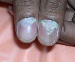 Psoriasis-nails-4