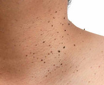 Multiple-skin-tags-around-neck-cropped.j