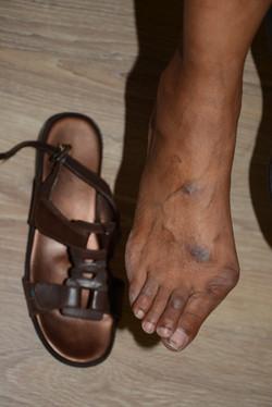 Shoe contact 9227