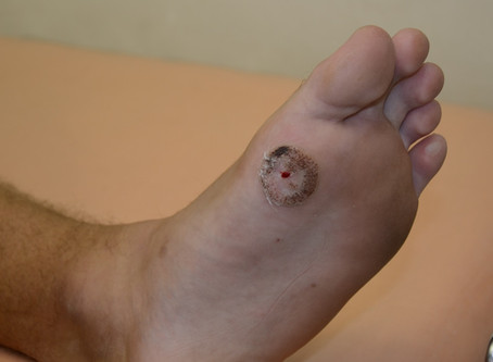 New treatment for viral warts