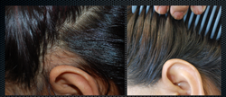 Alopecia aerata 2
