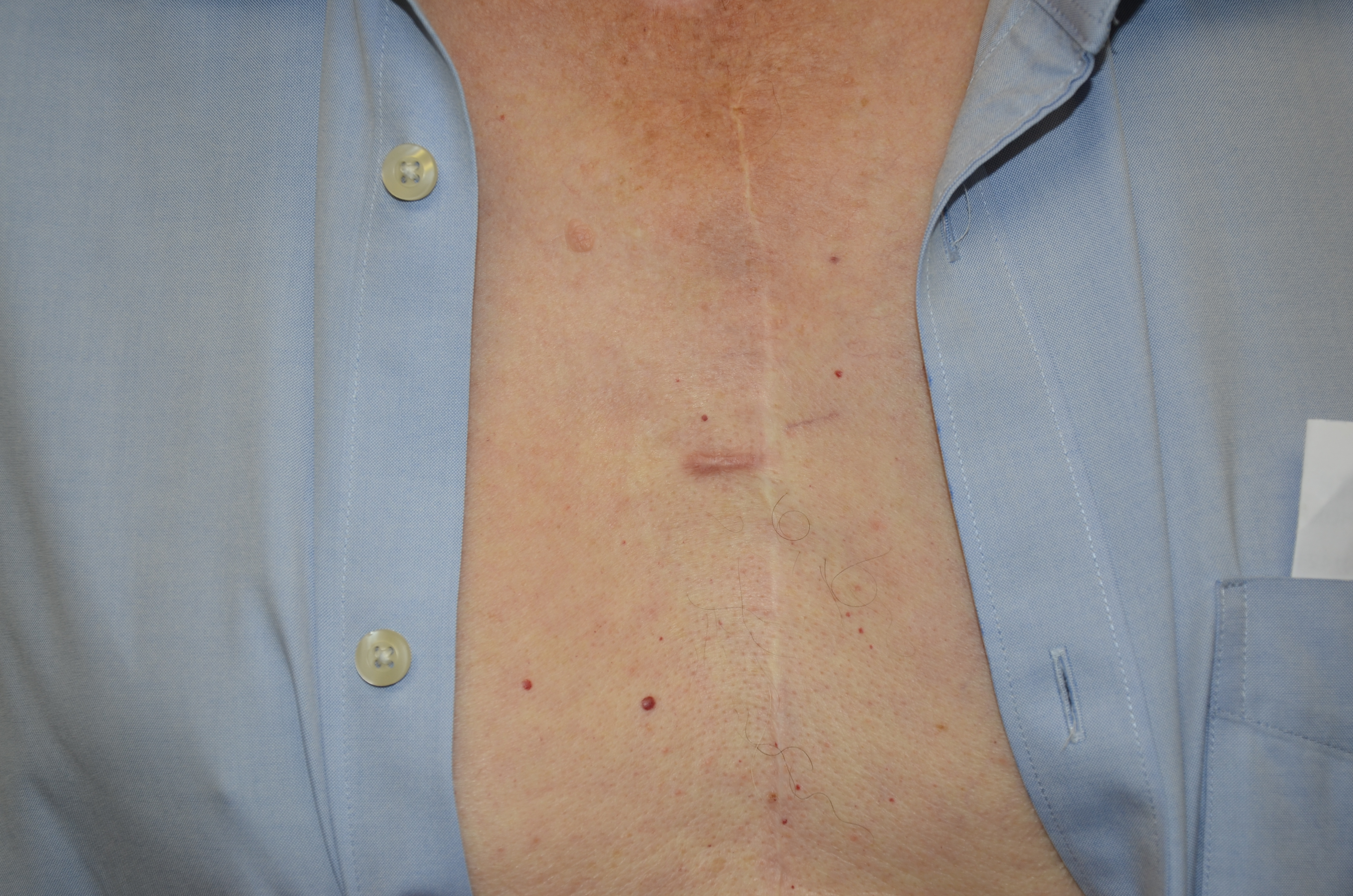 Keloid chest  before