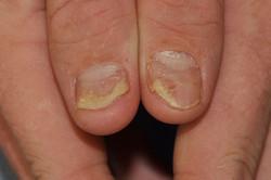 Psoriasis-nails-2