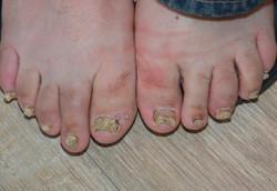 Psoriasis nails 4997