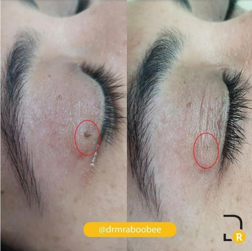 Skintag before and after removal