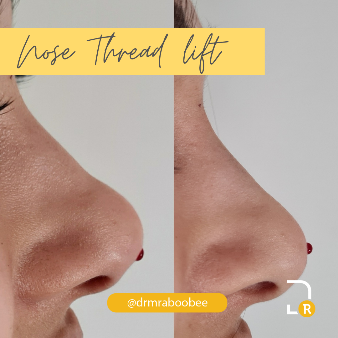 Nose Thread lift