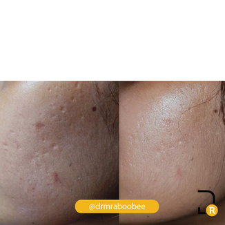 Acne scarring before and after