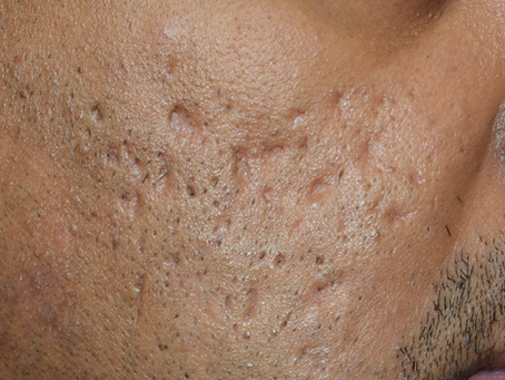Acne scars - what's available?