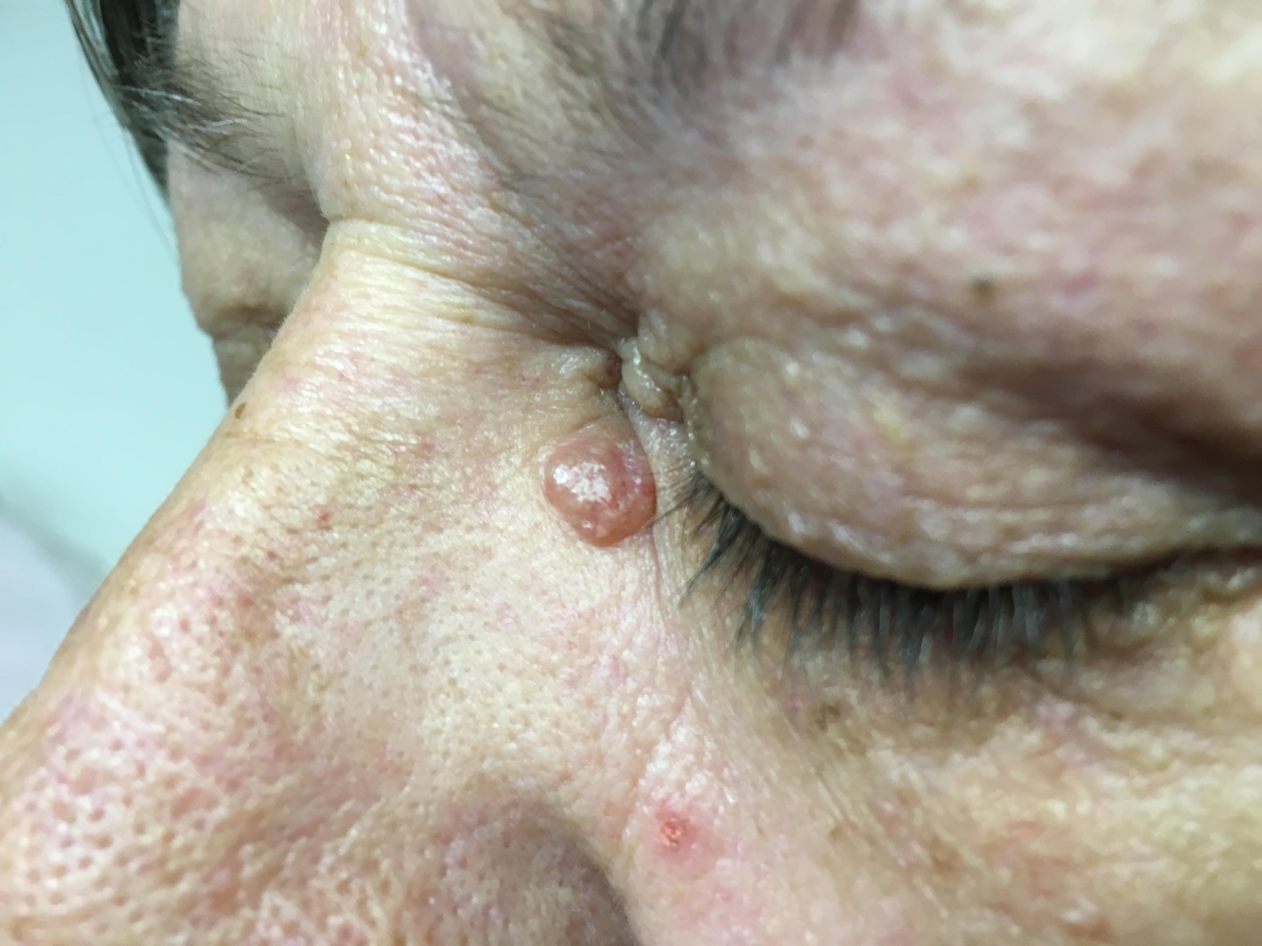 BCC adjacent to inner part of left eye