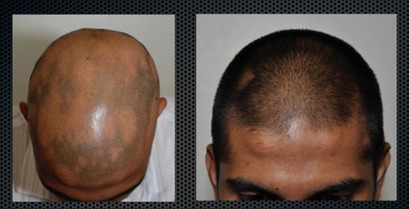 Alopecia aerata 3