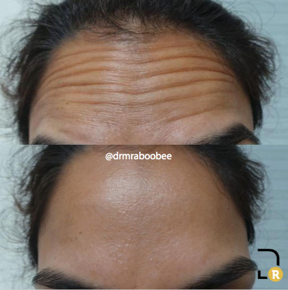 Botox Forehead lines before and after