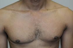 Pityriasis versicolor 1