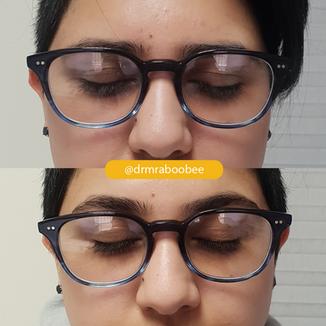 Eyebrow lift with Botox