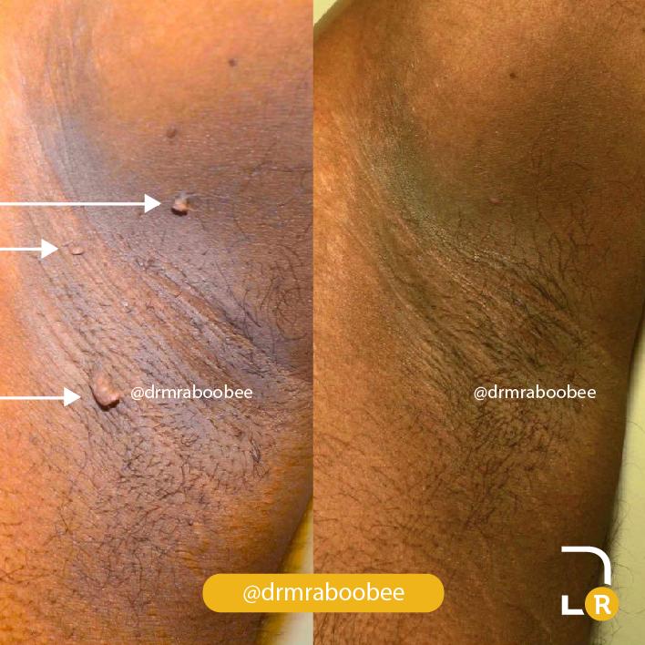 Skintag Removal