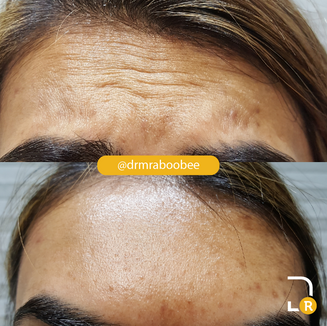 Forehead line treatment with Botox