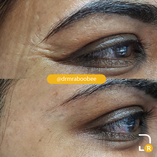 Crows feet treatment with Botox