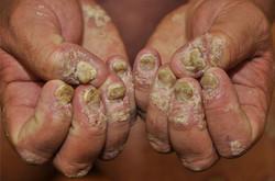 Psoriasis-nails-1