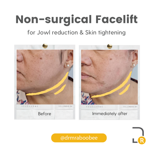Non surgical face lift