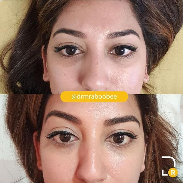 Before and 1 month after undereye Skinbooster