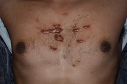 Keloid chest